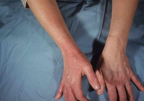 Рожистое воспаление рук
