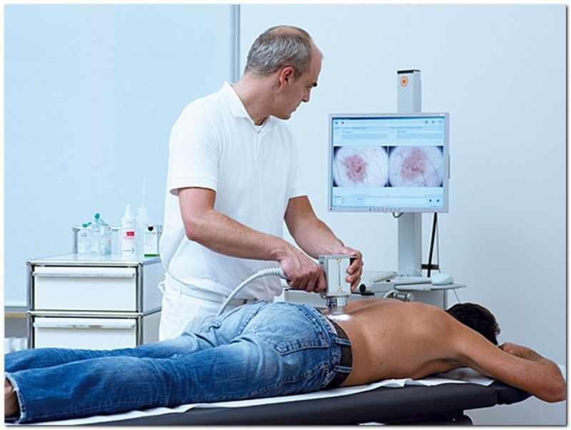 Обследование у доктора в сфере дерматологии, онкологии