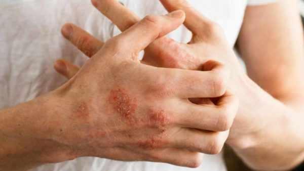 Мокнущий дерматит