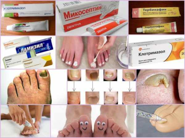 Виды мазей от грибковых заболеваний ног