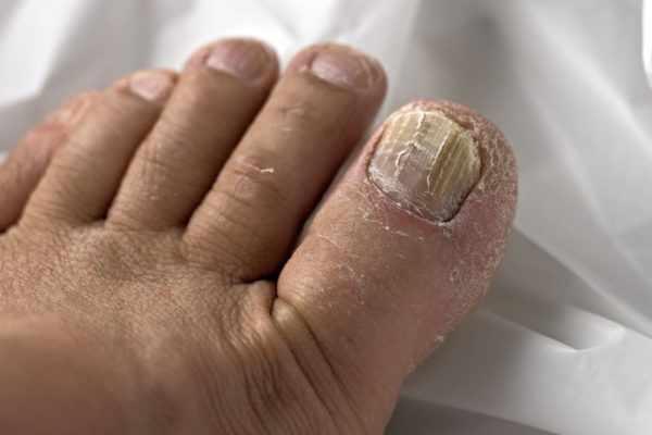 Грибковое поражение ногтей