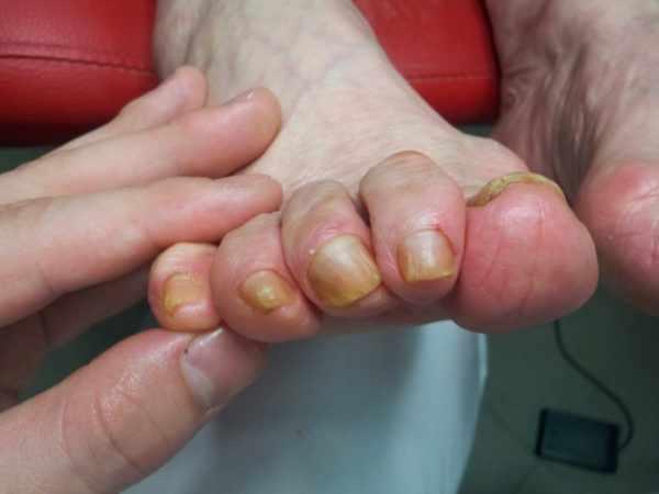 Грибковое поражение ногтей при сахарном диабете - частое явление