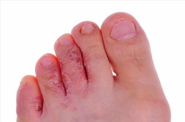 Мокнущий дерматит вследствие заражения грибком