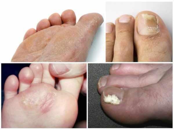 Грибок ступней и ногтей