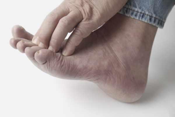 Зуд между пальцами ног