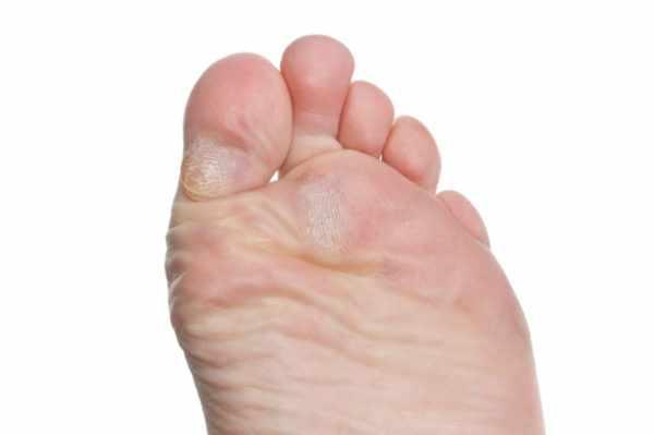 Бородавки на ноге