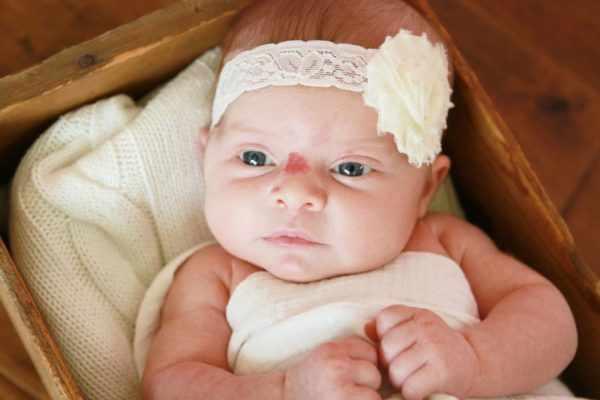 Гемангиома у детей и новорожденных