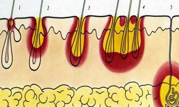 Стадии формирования карбункула