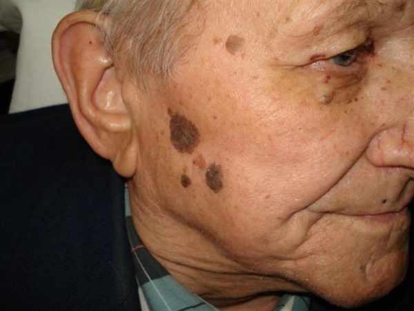 Старческая бородавка - себорейная кератома