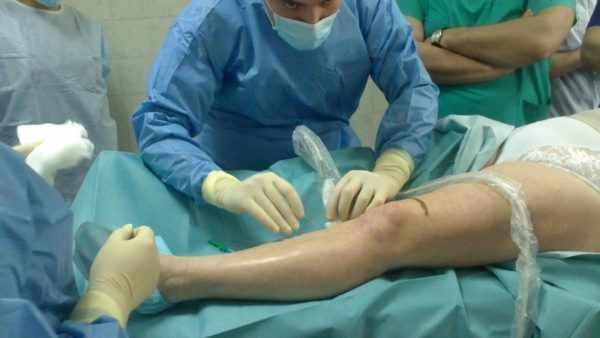Хирургическое лечение язвы