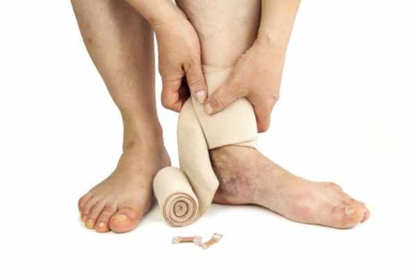 Варикозное расширение вен - одна из причин грибка ногтей на ногах
