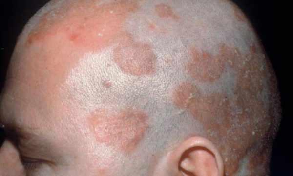 Себорейный дерматит - одна из причин облысения