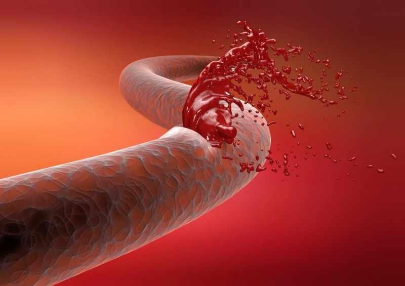 Разрыв кровеносных сосудов