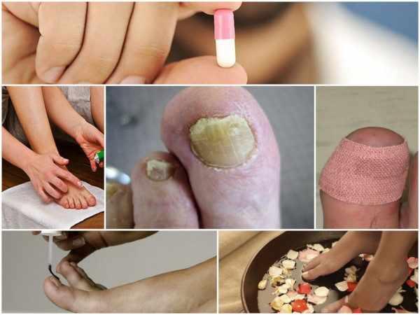 Комплексное лечение ногтевого грибка