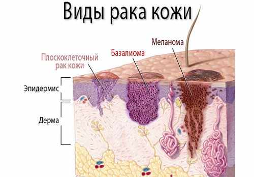 Виды рака кожи