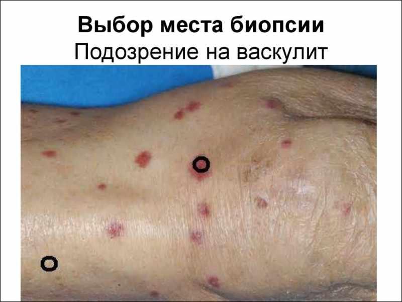 Диагностика васкулита