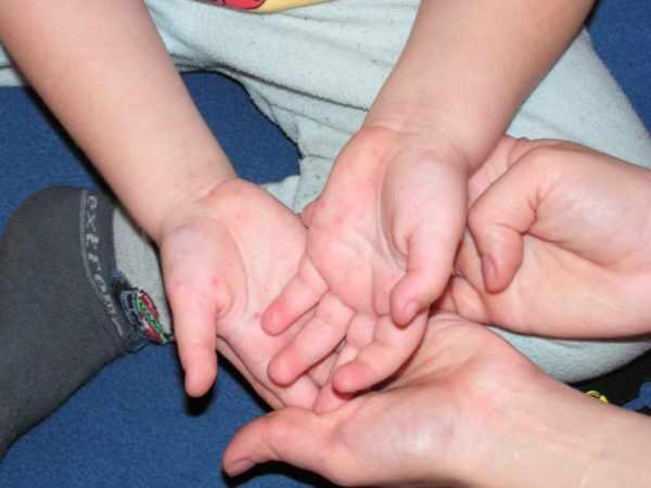Болезнь рука-нога-рот