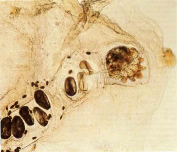 Чесоточный клещ в эпидермисе кожи