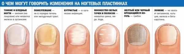 Диагностика здоровья по ногтям