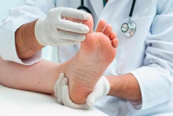 Бородавка на пальце ноги