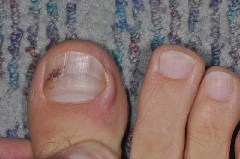 Ногтевая меланома