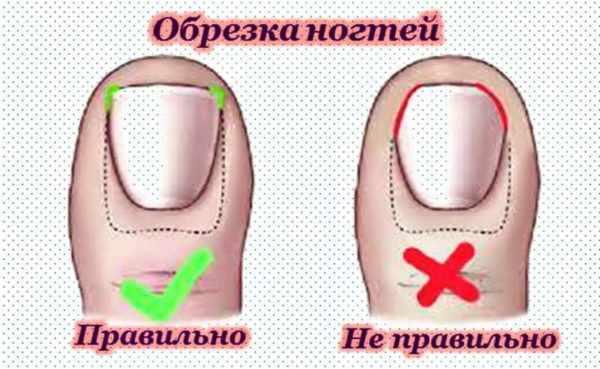 Правило обрезки ногтей на ногах