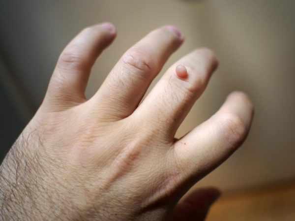 Бородавка на пальце