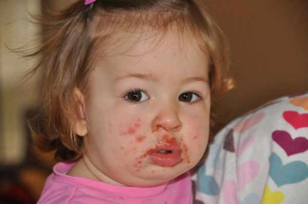 Сыпь вокруг рта при энтеровирусе