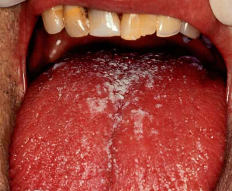 Кандидоз во рту