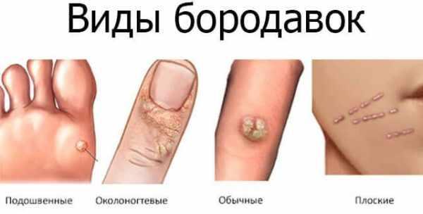 Причины появления бородавок на руках и методы их лечения